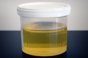 New device created to smell cancer in a man's urine. Pic © Wikimedia Commons